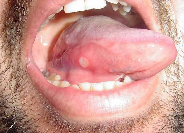Canker Sore Under Tongue