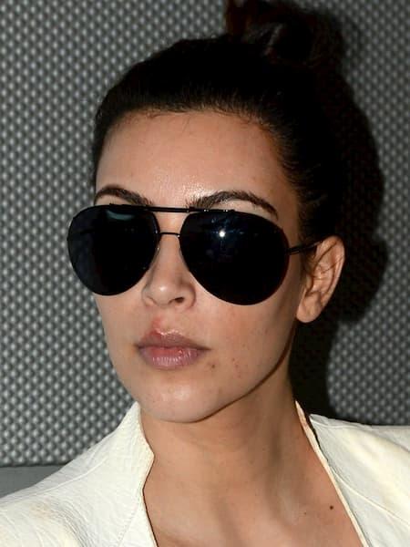 Kim Kardashian celebrity with cold sores