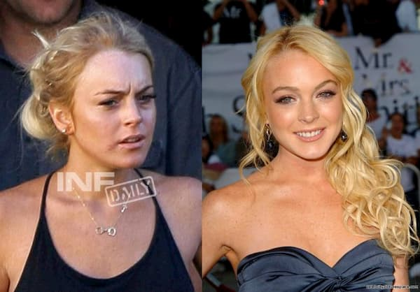lindsay lohan celebrities with cold sores