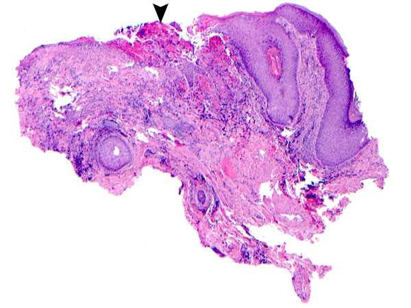 Histopathology of Herpes simplex infection of skin Courtesy of Dr. Cary Chisholm, Department of Pathology, Scott & White Memorial Hospital, Temple, Texas